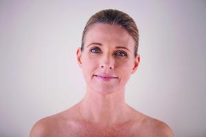 holistic microneedling beauty natural organic skin face treatment