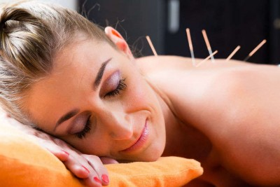 Woman at acupuncture session with needles in back